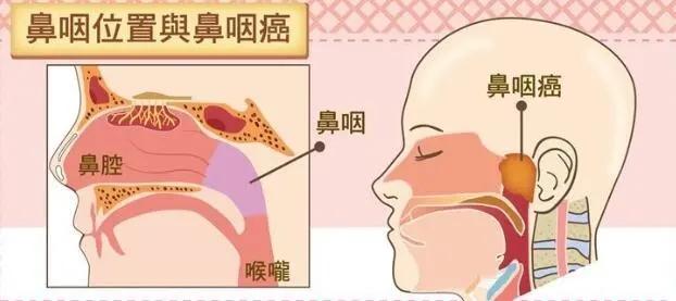 """又一知名导演因鼻咽癌逝世!为什么它被称为""""广东癌""""?"""