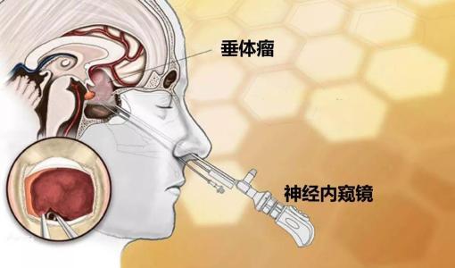 喜讯!我院联合南方医科大学神经外科专家团队,成功开展内镜经鼻垂体瘤切除术