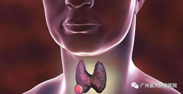 《我和我的家乡》中表舅的甲状腺瘤会要命吗?