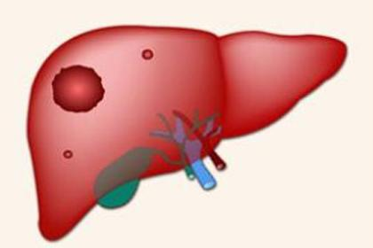肝占位是肝癌吗?