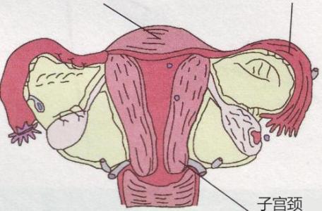 宫颈癌如何治疗